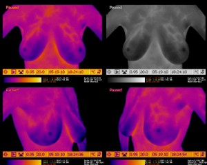 Breast Thermography - Demonstrating Vessels in the Upper Breasts