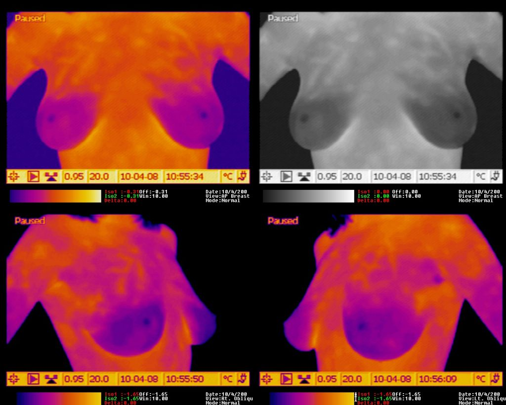 Thermalgram for breast