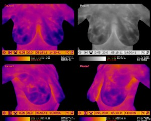 Breast Thermography - Demonstrating More Vascularity