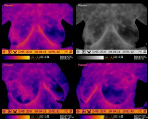 Breast Thermography - Invasive Intraductal Carcinoma Deep to the Outer Right Areola