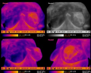 Abnormal Breast Thermogram