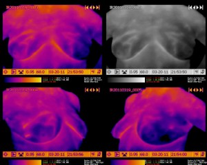 Breast Thermogram - Global Increase in Temperature of the Right Breast