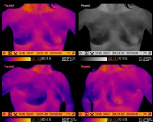 Breast Thermogram - Demonstrating Hyperthermic Left Areola
