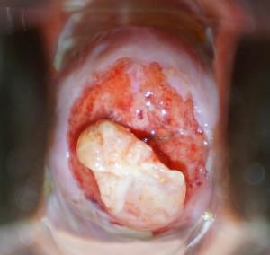 Eschar removal from cervix.